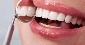 sonrisas perfectas dentistas clinica dental en